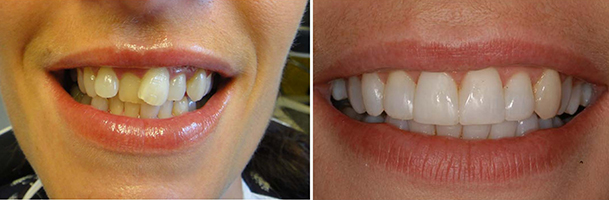 Start Smiling: Best Dentist in Essex case-5  Best Dentist In Essex