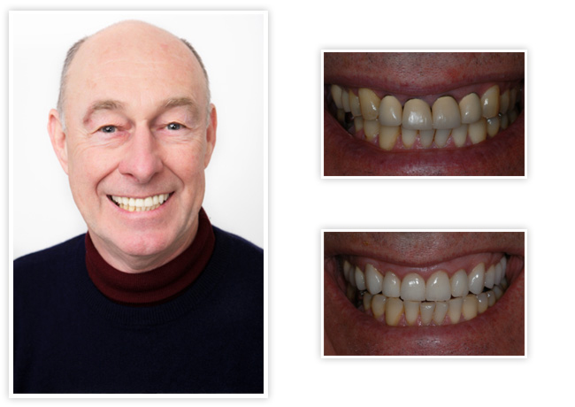 Start Smiling: Best Dentist in Essex gary-big  Best Dentist In Essex