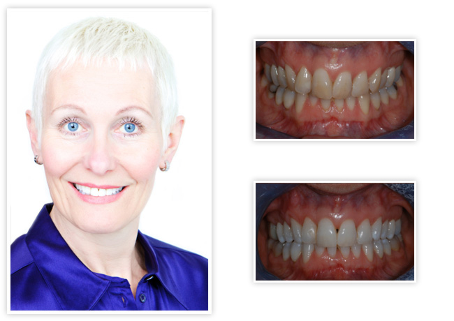 Start Smiling: Best Dentist in Essex jackie-big  Best Dentist In Essex