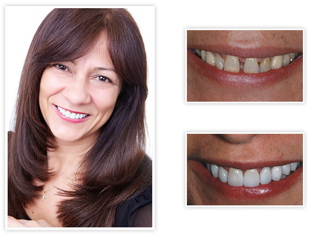 Start Smiling: Best Dentist in Essex onilda-big  Best Dentist In Essex