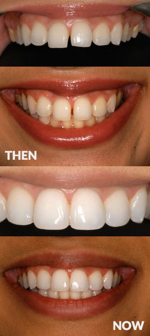 Start Smiling: Best Dentist in Essex STRAIGHTENING-BONDING-CASE