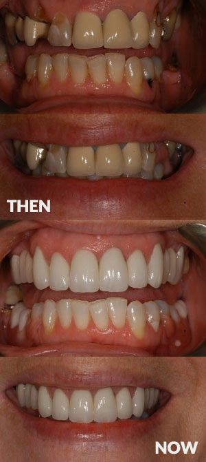 Start Smiling: Best Dentist in Essex Smile-makeover