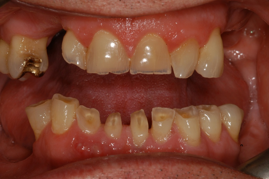 Start smiling best dentists essex denture example before solutioingenieria Choice Image