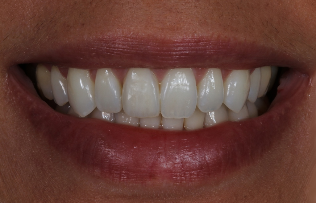 Start Smiling: Best Dentist in Essex Newsleteer-case-2-After-  Best Dentist In Essex