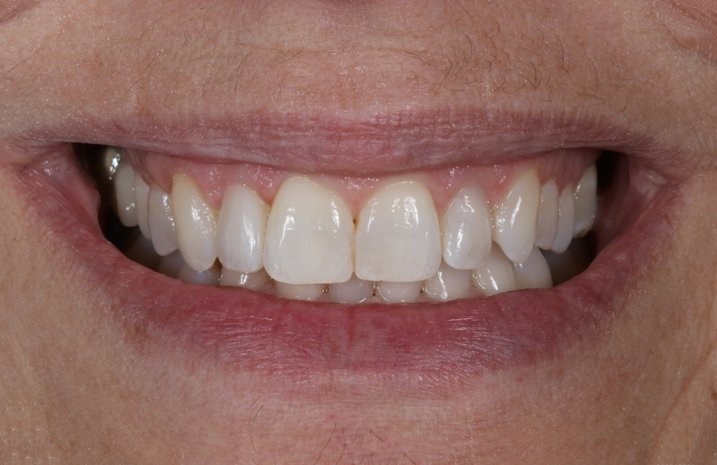 Start Smiling: Best Dentist in Essex Orthodontics-Example-2-After  Best Dentist In Essex