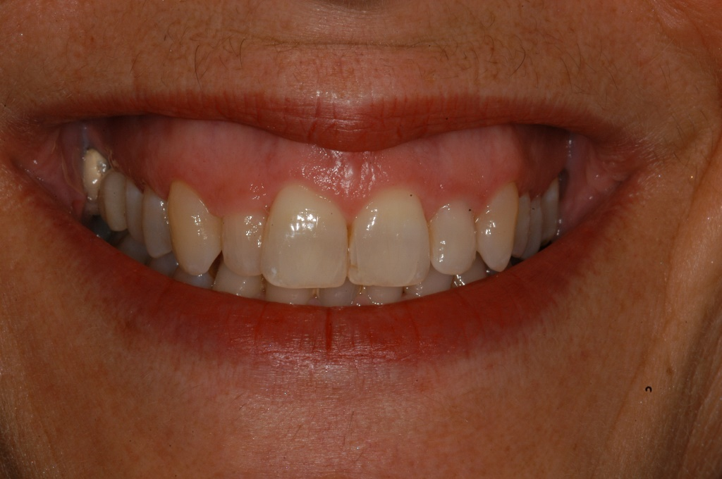 Start Smiling: Best Dentist in Essex Orthodontics-Example-2-Before  Best Dentist In Essex