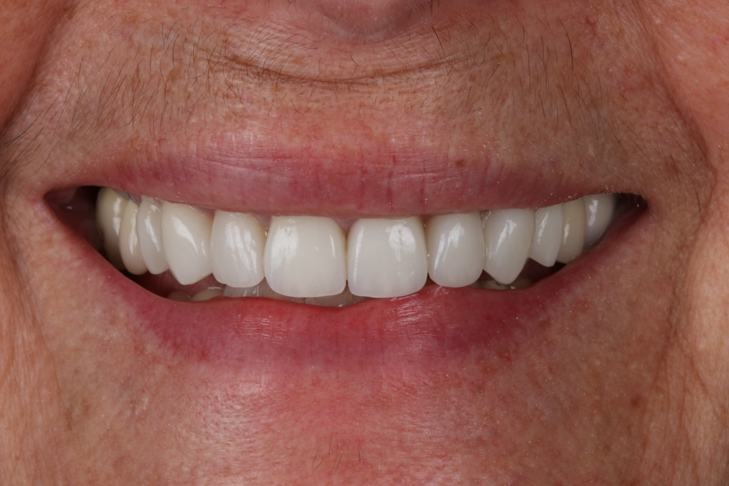 Start Smiling: Best Dentist in Essex Veneer-Case-5-After  Best Dentist In Essex