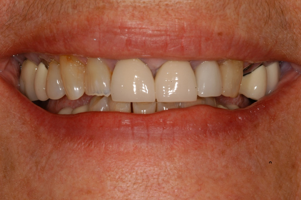 Start Smiling: Best Dentist in Essex Veneer-Case-5-Before  Best Dentist In Essex