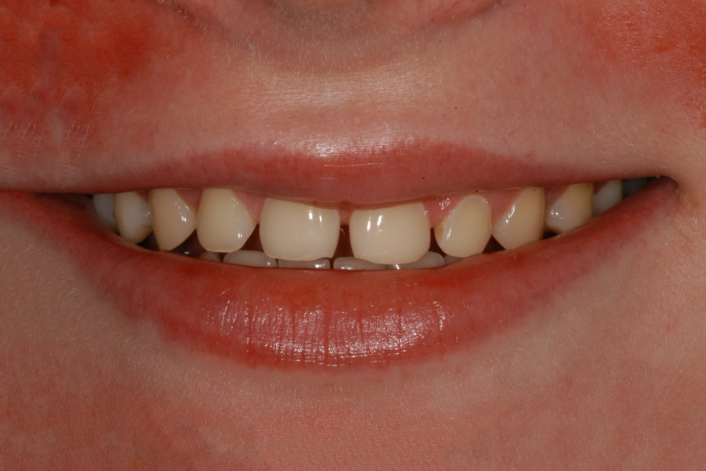 Start Smiling: Best Dentist in Essex Veneer-Example-4-Before  Best Dentist In Essex