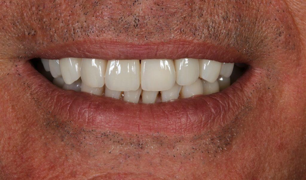 Start Smiling: Best Dentist in Essex Veneers-Example-2-After--e1515687921657  Best Dentist In Essex