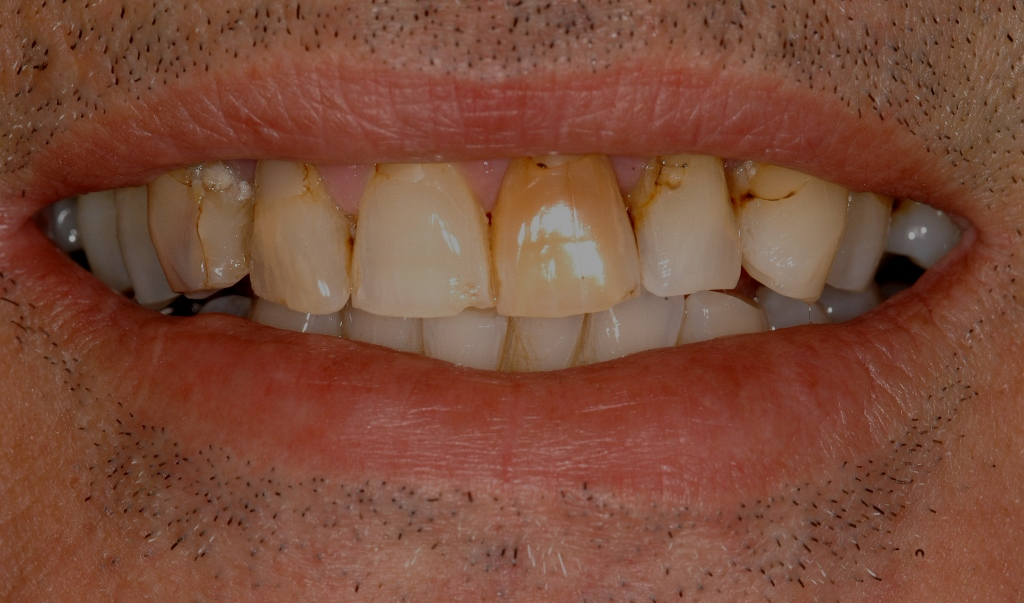 Start Smiling: Best Dentist in Essex Veneers-Example-2-Before  Best Dentist In Essex
