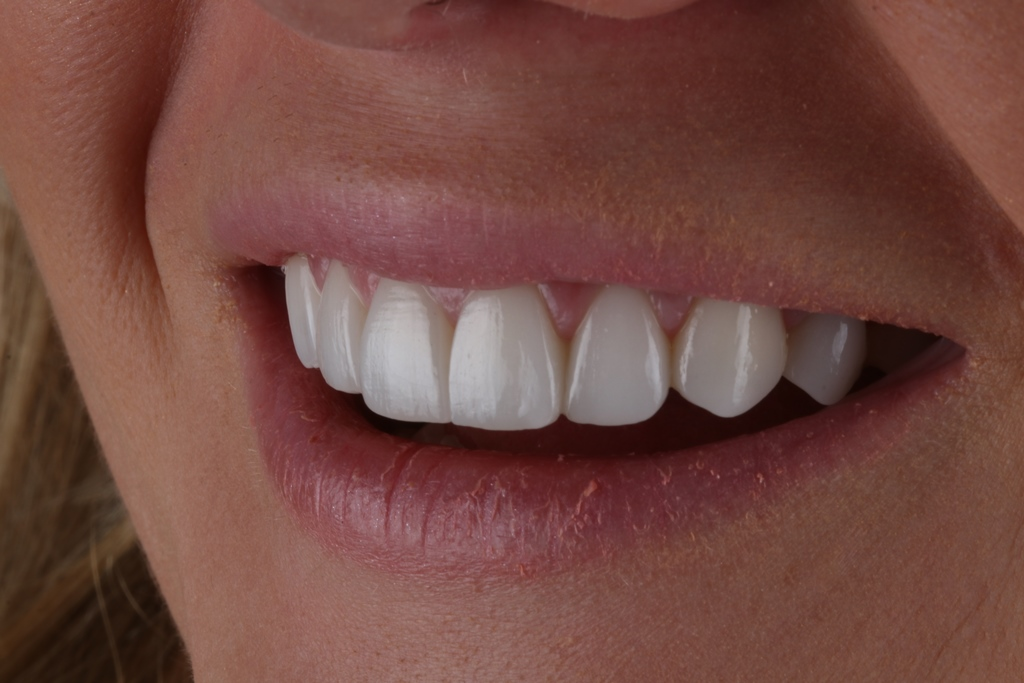 Start Smiling: Best Dentist in Essex Veneers-Example-3-After-close-up  Best Dentist In Essex