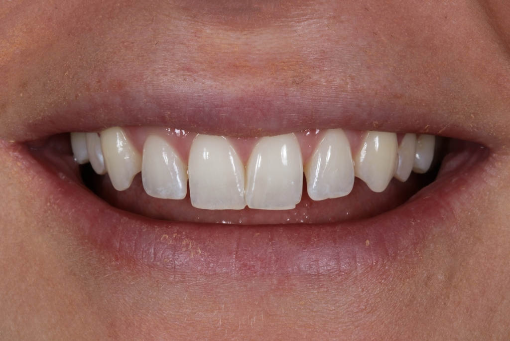 Start Smiling: Best Dentist in Essex Veneers-example-3-Before-close-up  Best Dentist In Essex