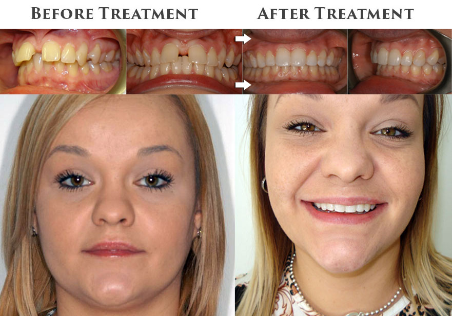 Start Smiling: Best Dentist in Essex before-and-after-cfast  Best Dentist In Essex