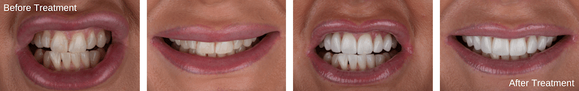 Start Smiling: Best Dentist in Essex Before-Treatment-min  Best Dentist In Essex