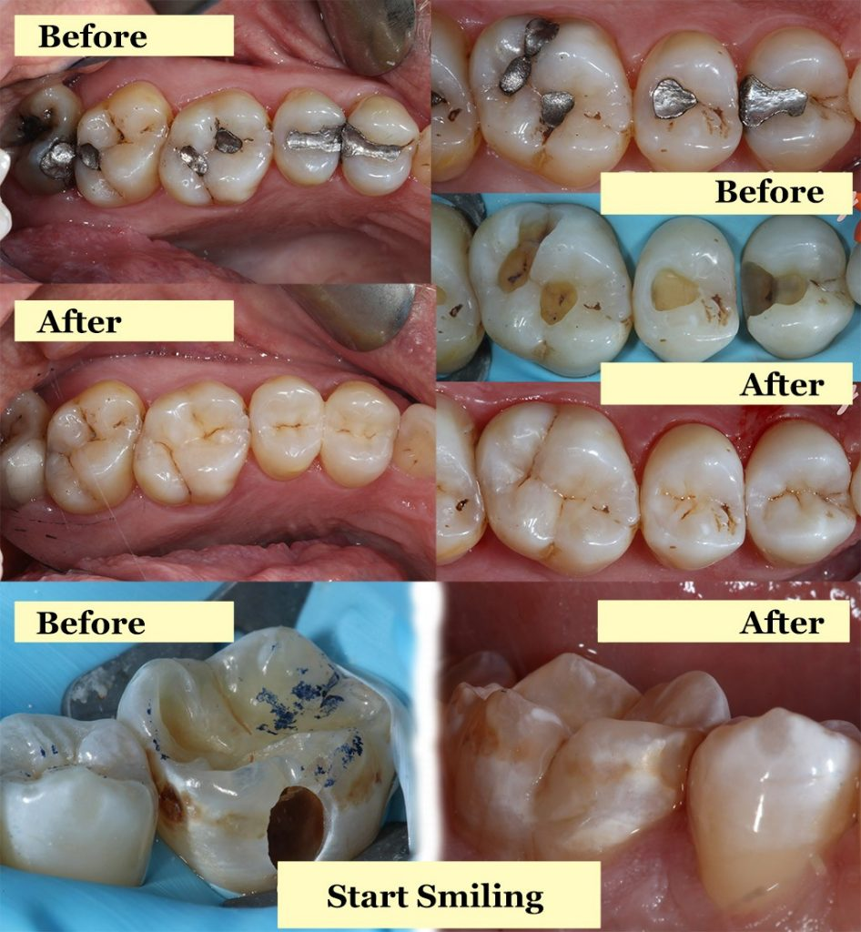 Start Smiling: Best Dentist in Essex before-and-after-white-fillings-946x1024