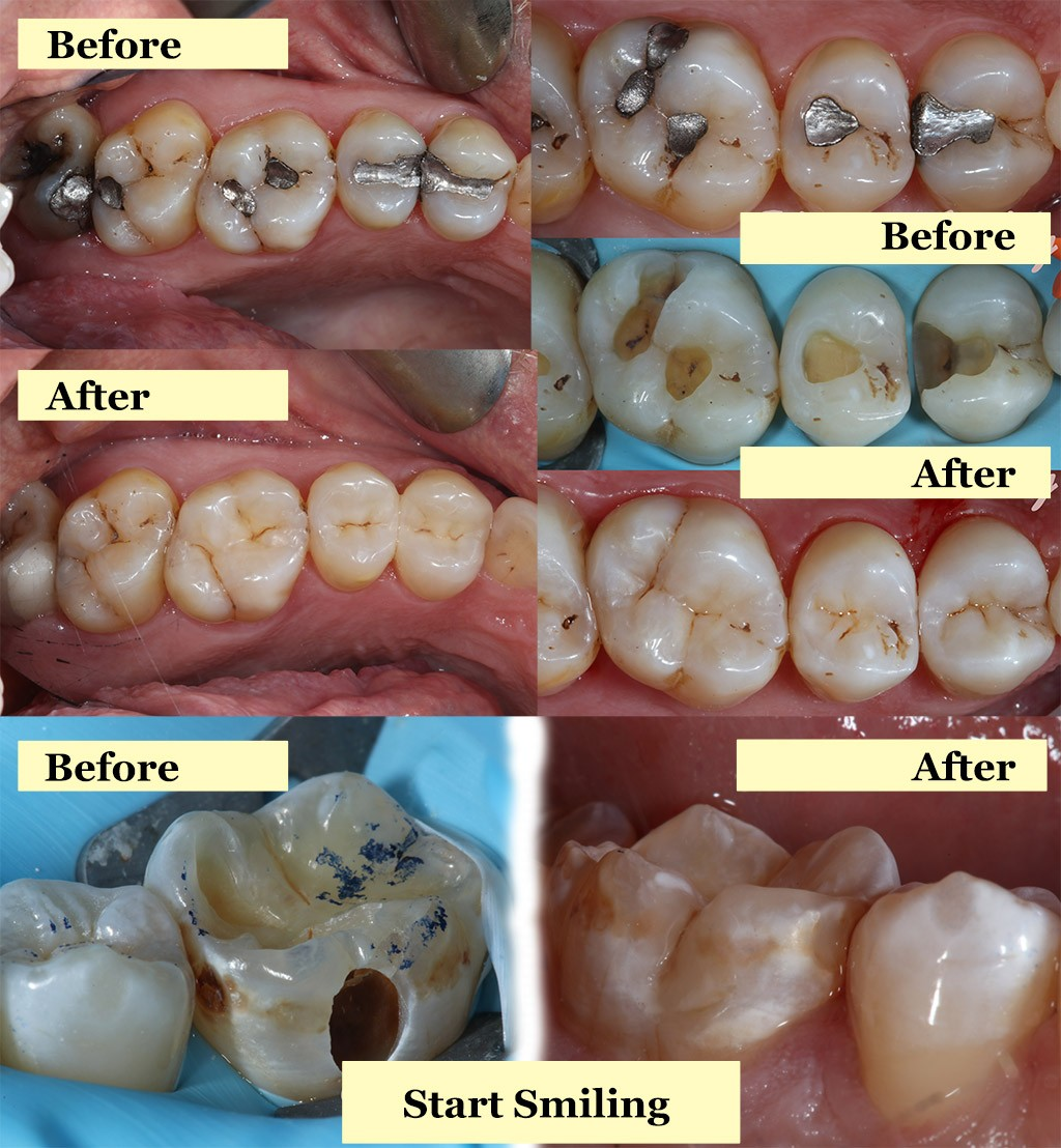 Start Smiling: Best Dentist in Essex before-and-after-white-fillings