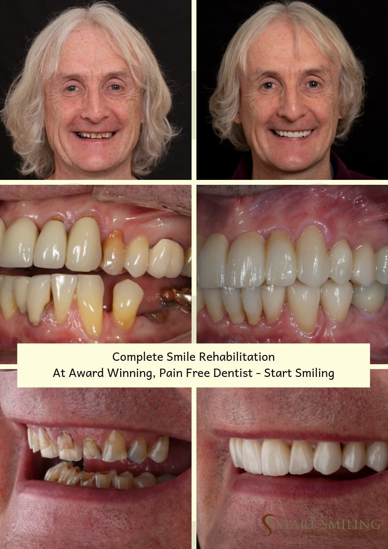 Start Smiling: Best Dentist in Essex smile-gallery-start-smiling-min