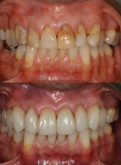 Start Smiling: Best Dentist in Essex veneers-case-study-2