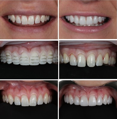 Start Smiling: Best Dentist in Essex veneers-case-study